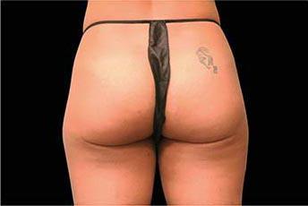 エムスカルプト女性-側面症例写真