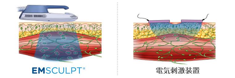 エムスカルプトと電気刺激装置の比較