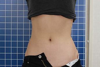 SUEクリニックのエムスカルプト女性-正面症例写真